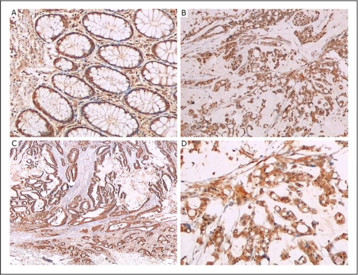 LC3B protein was detected in human colorectal cancer tissues and normal tissues by immunohistochemical staining with LC3B antibody. A: Columnar epithelial cells of normal colon mucosa expressing LC3B; original magnification, × 40. B, D: LC3B expression in poorly differentiated cancer; original magnification, × 20 and × 40. C: LC3B expression in moderately differentiated cancer; original magnification, × 20.