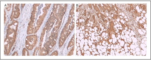 LC3B protein was detected in human colorectal cancer tissues by immunohistochemical staining with LC3B antibody. The intensity of LC3B expression is stronger in the peripheral area (B) than in the central area (A) in the same tissue. Original magnification, × 40.