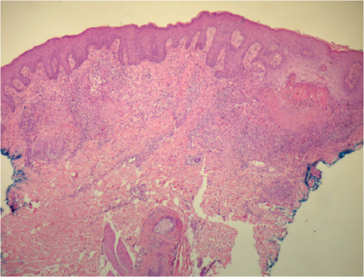 Histopathological exam of the perianal ulcer showing a dense histiocytic infiltrate and central caseous necrosis.