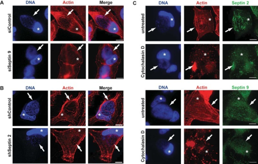 Targeting septins by RNAi disrupts F actin structures on the inclusion, while inhibiting F actin disrupts septin cages. (A and B) HeLa cells were transfected with siRNA targeting SEPT9 (A), or SEPT2-specific shRNA was induced (B). At 24 h posttransfection/-induction, cells were infected with C. trachomatis, and they were fixed at 30 h postinfection and stained with phalloidin-Alexa 546 to detect F actin and with Hoechst dye. Inclusions are indicated by arrows. Cell nuclei are marked with asterisks. (C) HeLa cells were infected for 30 h and stained for SEPT2 or SEPT9 and F actin as indicated. To some aliquots, cytochalasin D was added 30 min prior to fixation. DNA was stained with Hoechst dye. Inclusions are indicated by arrows. Cell nuclei are marked with asterisks. Scale bar, 10 µm. All images are representative of 3 independent experiments.