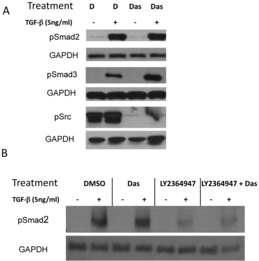 Combination TGFβ-1 and dasatinib treatment effect on phosphorylation of canonical and non-canonical TGFβ pathway intermediaries.A549 NSCLC cells were treated with DMSO, 5 ng/mL TGFβ-1, 100 nM dasatinib, or a combination of 5 ng/mL TGFβ-1 and 100 nM dasatinib for different amounts of time (1 hour for detection of pSmad2 and pSmad3, and 48 hours for detection of pSrc). After incubation, whole cell lysates were collected and subjected to Western blotting with the indicated antibodies.