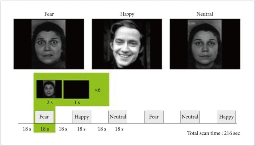 Paradigm design and examples of the stimuli used in the emotional face perception task. The emotional face stimuli for each category (happy, fear, and neutral) were presented as a block unit. In a block, each emotional face picture was shown for 2 seconds (a blank screen was shown for 1 second immediately after the picture), and six emotional face pictures were shown per block.