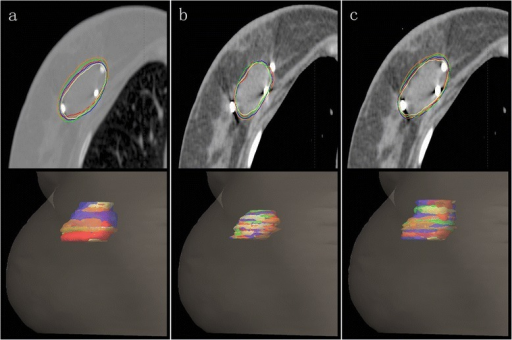 Single CT slice and volumetric image of one patient with delineated TBC(a), TBS(b) and TBC+S(c) of all 5 observers. TBC, the TB delineated based on clips; TBS, the TB delineated based on the seroma; TBC+S, the TB delineated based on both seroma and clips.