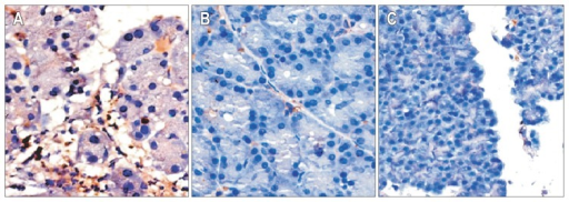 Nuclear factor κB expression in the pancreas. (A) Acute necrotizing pancreatitis (ANP) group, (B) ANP with pyrrolidine dithiocarbamate pretreatment group, and (C) sham-operation control group (A, B, and C, H&E stain, ×200).