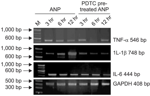 Electrophoresis of reverse transcription polymerase chain reaction results of the tumor necrosis factor α (TNF-α), interleukin (IL)-1β, and IL-6 mRNA in the rat pancreas. ANP, acute necrotizing pancreatitis; PDTC, pyrrolidine dithiocarbamate.