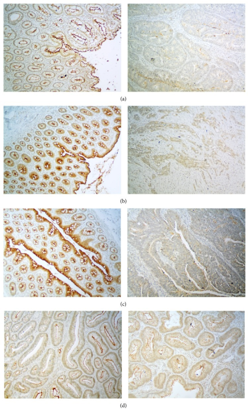 Immunohistochemical staining examples of mucin-like protocadherin in tissue samples. (a–c) Three examples of adenocarcinoma (AC) and matched normal colonic mucosa (NC). Two of the samples were classified as negative for membrane expression (a, b) and one as of low expression (c); (d) two examples of adenomas with moderate mucin-like protocadherin membrane expression; magnification ×100.