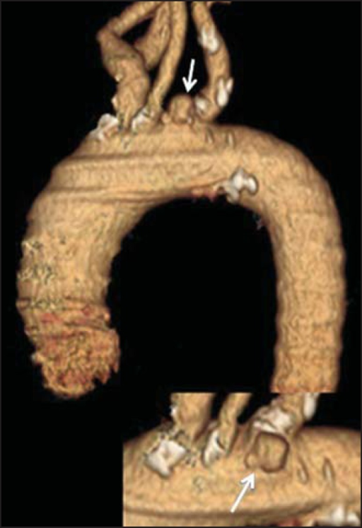 3D reconstruction, volume-rendered image. Digitform or collar button imagedeforming the expected contour of the aortic arc wall between the common carotidand left subclavian arteries, compatible with PAU.