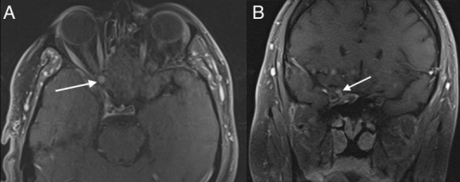 Postoperative T1-weighted MRI with contrastAxial view demonstrating a roughly stable enhancing schwannoma following decompression and biopsy as pointed out by the white arrow (A). Coronal view with the tumor again highlighted by the white arrow (B).