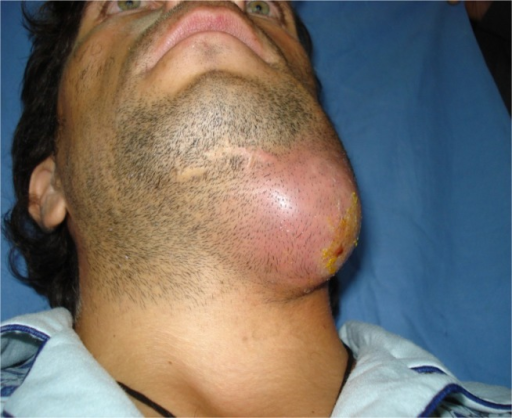 Preoperative clinical appearance of a patient included in the study group, with an abscess in the submandibular salivary gland area.