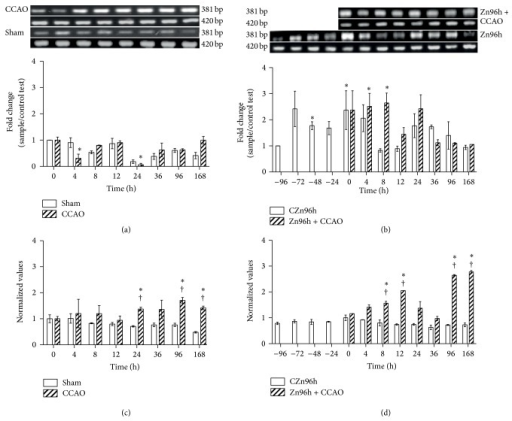 The subacute administration effect of zinc on levels of IGF-1 expression after hypoxia-ischemia in rats. RT-PCR was used to determine mRNA levels of IGF-1 (381 bp) and GA3PDH (420 bp). ((a) and (b)) Showing representative photographs of ethidium-bromide-stained RT-PCR products fractionated on 2% agarose gel and the respective densitometry analysis. ((c) and (d)) Showing the IGF-1 protein levels measured using ELISA. Each value represents the mean ± SEM of 5 independent experiments in triplicate. (1) Zn96h, rats injected with ZnCl2 (one dose every 24 h during 4 days). (2) Zn96h + CCAO, rats treated with zinc before 10 min of common carotid artery occlusion (CCAO). (3) CCAO, rats with CCAO only. (4) Sham group, rats with mock CCAO. (5) Untreated rats. ∗, significant when compared with the control group; ANOVA test and post hoc Dunnett's test. †, significant when compared between groups; unpaired Student's t-test. P < 0.05.