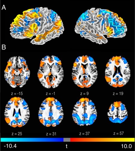 Brain activity associated with the generation phase.Statistical t map of GenNewPoem‐RecMemPoem on a 3D brain surface (A) and axial slices (B) (FWE < 0.05). t‐scores are rendered in colors ranging from negative (violet) to positive (yellow) as indicated by the accompanying color bar.