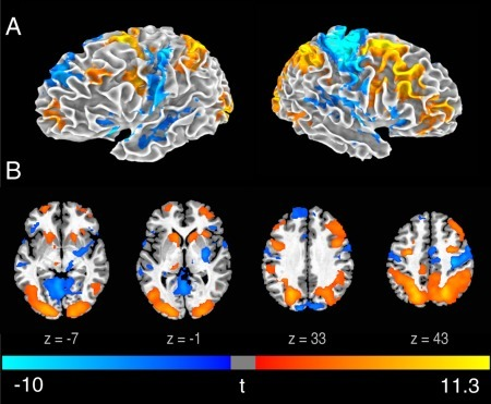 Brain activity associated with the revision phase.Statistical t map of RevNewPoem‐GenNewPoem on a 3D brain surface (A) and axial slices (B) (FWE < 0.05). t‐scores are rendered in colors ranging from negative (violet) to positive (yellow) as indicated by the accompanying color bar.
