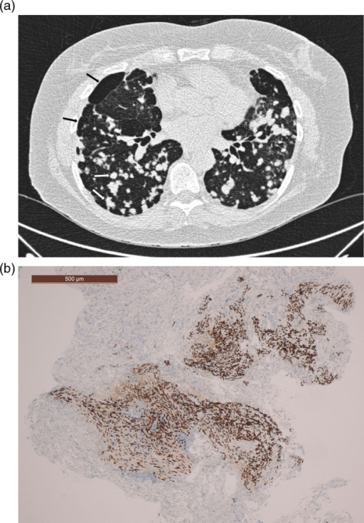 (a) HRCT showing nodules (white arrows) and cysts (black arrows). (b) Transbronchial biopsy of the lung (estrogen receptor immunohistochemical stain).