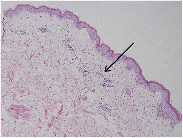 "Histopathology of skin biopsy revealing spongiotic epidermis with focal parakeratosis, exocytosis, and spongiotic vesicles, along with papillary dermal edema, superficial dermal perivascular inflammatory infiltrate, and mixed dermal interstitial inflammation with eosinophils (H&E, ×10). The arrow points to the ""papillary dermal edema and superficial dermal perivascular inflammatory infiltrate"""