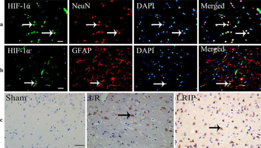 Immunohistochemical staining for HIF-1α in ischemic cerebral cortex at 3d reperfusion after MCAO injury. a Immunofluorescence double staining for HIF-1α/NeuN in neurons treated by LRIP. b Immunofluorescence double staining for HIF-1α/GFAP in astrocytes treated by LRIP. The immunofluorescence showed nucleus were stained by DAPI with blue color and HIF-1α were stained with green color, neurons were stained by NeuN and astrocytes were stained by GFAP with red color, and the co-expression of NeuN with HIF-1α within the same cell showed blue color (merged), the co-expression of GFAP with HFI-1α within the same cell showed white color (merged). The arrow showed double staining for HIF-1α/NeuN or HIF-1α/GFAP (scale bar = 20 μm). c HIF-1α immunoreactivity was marked with brown color in cytoplasm (scale bar = 20 μm)