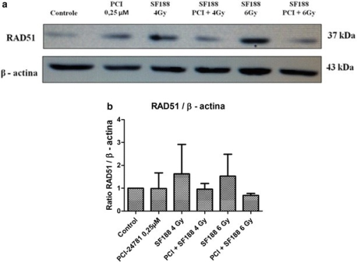PCI-24781 alters the expression of the RAD51 protein. a PCI-24781 reduces the expression of the RAD51 protein, important for the repair of double-strand breaks caused by irradiation through the nonhomologous end joining (NHEJ) pathway. b Ratio between the RAD51 and endogenous β-actin