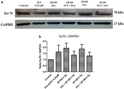 PCI-24781 alters the expression of the Ku70 protein. a PCI-24781 reduces the expression of the Ku70 protein, important for the repair of double-strand breaks caused by irradiation through the nonhomologous end joining (NHEJ) pathway. b Ratio between the Ku70 protein and endogenous GAPDH