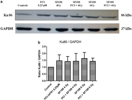PCI-24781 alters the expression of the Ku86 protein. a PCI-24781 reduces the expression of the Ku86 protein, important for the repair of double-strand breaks caused by irradiation through the nonhomologous end joining (NHEJ) pathway. b Ratio between the Ku86 protein and endogenous GAPDH