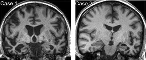 Brain MRI profiles in patients with semantic dementia and food aversion.Representative coronal T1-weighted MR sections through the anterior temporal lobes are presented for each of the patients described; the left hemisphere is shown on the right for both sections. In each case, there is relatively focal, asymmetric atrophy of the anterior temporal lobes, most marked medially and inferiorly (predominantly right-sided though bilateral in Case 1, predominantly left-sided in Case 2).