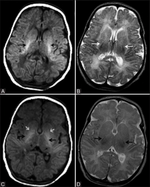 (A, B): Axial magnetic resonance imaging (MRI) of a 5 day old full-term neonate at the level of internal capsule. (A) T1 weighted image (WI) shows normally increased signal intensity (SI) of the posterior limb of internal capsule relative to the basal ganglia and thalamus; (B) Corresponding T2WI shows normal hypointense signal of the posterior limb of internal capsule; (C, D): Just above (A, B), shows normal variation in SI of the basal ganglia and thalamus. (C) T1WI shows normally increased SI of the posterior limb of internal capsule (large black arrow) and ventrolateral thalamus (small black arrows). Note the moderate hyperintensity of globus pallidus, which is a normal variation (small white arrow). (D) Corresponding T2WI shows normal hypointense signal of the posterior limb of internal capsule