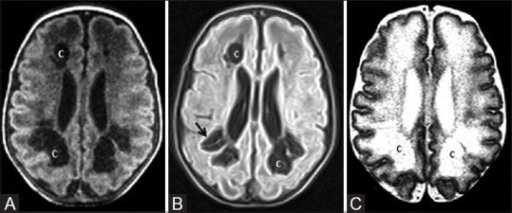 A 31-day-old infant born preterm (31 weeks) shows mild-to-moderate hypoxic ischemic injury. The infant also had refractory hypoglycemia. (A) Axial T1WI at the level of lateral ventricles shows frontal and posterior periventricular white matter cysts. (B) Axial fluid-attenuated inversion recovery (FLAIR) and T2WI at the level of lateral ventricles show frontal and posterior periventricular white matter cysts (C) with gliosis (arrows)