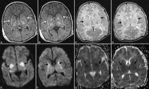 A 12-day-old full-term neonate; HIE stage II—severe hypoxic ischemic injury involving deep grey matter structures. (A, B) Axial T1WI at the level of basal ganglia shows abnormal T1 hyperintensity of the ventrolateral thalamus and posterior putamen (black arrows). Note the absence of normal T1 hyperintensity of the posterior limb of internal capsule. (C, D) Axial T2WI at the level of basal ganglia shows abnormal T2 hyperintensity of the thalamus and putamen (black arrows). Note the absence of normal T2 hypointense signal of the posterior limb of internal capsule. (E, F) Axial DWI at the level of basal ganglia shows diffusion restriction involving the posterior putamina and internal capsules (black arrows). (G, H) Axial ADC maps at the level of basal ganglia show corresponding hypointensity in the posterior putamen and internal capsules, denoting diffusion restriction (black arrows)