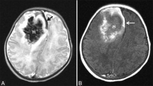 A 6-day-old term neonate, with history of perinatal depression. Axial T2 (A) and Axial T1 (B) WI show parenchymal subacute hematoma (H) in the right frontal lobe with mass effect. Also note subacute SDH in the right frontal region and anterior interhemispheric fissure (arrow)