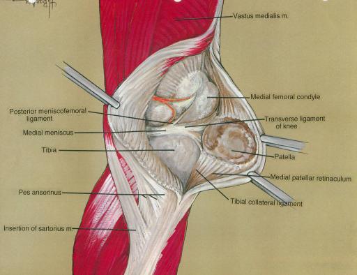 posterior meniscofemoral ligament; medial meniscus; tib | Open-i