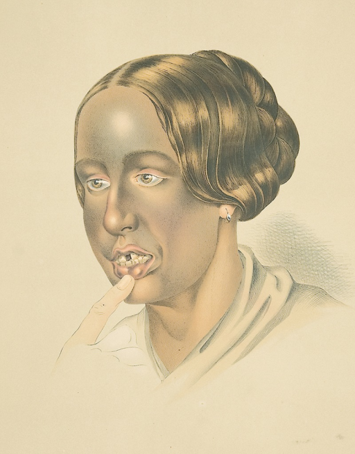 <p>Image of a lithograph from Hebra's Atlas, pt. 8, pl. 7, showing a picture of a woman with bronze tan, caused by intake of silver-bearing medicaments. Her mouth is slightly open, as a finger pushes down on her lower lip, exposing a gap in her upper front teeth.</p>