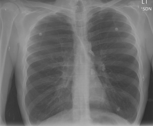 PA and lateral chest x-XXXX dated XXXX, XXXX at XXXX p.m. Three total images.