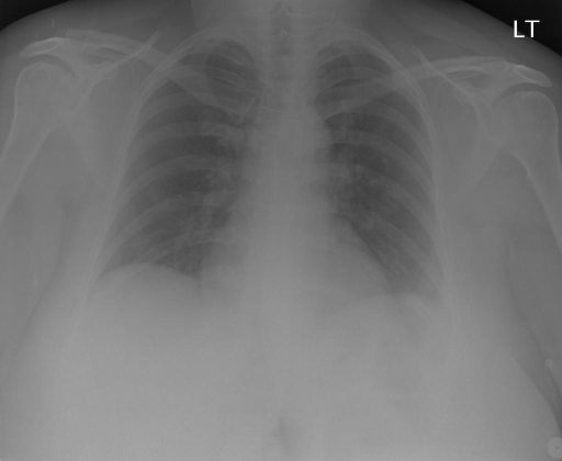 PA and lateral views of the chest dated XXXX.