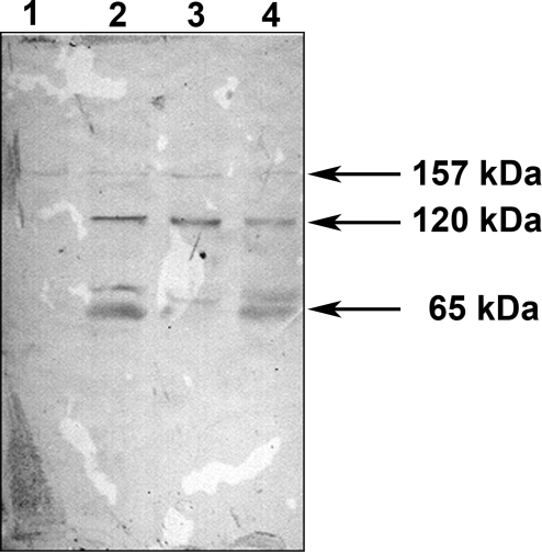 PmpD processing and secretion at 28°C.McCoy cells infected with C. trachomatis serovar L2 were incubated at 28°C, harvested every 48 h, and soluble fractions prepared as described in METHODS. The proteins in each soluble fraction were reacted in an immunoblot with antibodies against fragment 2 of PmpD. Lane 1, 48 h p.i. Lane 2, 96 h p.i. Lane 3, 144 h p.i. Lane 4, 192 h p.i.