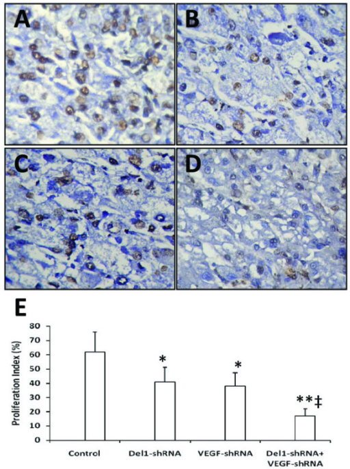 "shRNA gene therapy inhibits tumor cell proliferation in situ. Illustrated are representative tumor sections prepared 3 weeks after treatment from mice receiving either control vector (A), Del1-shRNA (B), VEGF-shRNA (C), or a combination of Del1-shRNA plus VEGF-shRNA plasmids (D). Tumor sections were stained with anti-Ki-67 Ab to detect proliferative cells. (E) The Ki-67 positive cells were counted to calculate the proliferation index. A significant difference in proliferation index between tumors treated with Del1-shRNA or VEGF-shRNA compared with control is denoted by ""*"", and a highly significant difference between Del1-shRNA + VEGF-shRNA versus control by ""**"", and a significant difference between the combinational therapy and Del1-shRNA or VEGF-shRNA monotherapies by ""‡""."