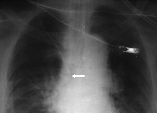 Figure 1:External Jugular Vein Catheterization Using ...
