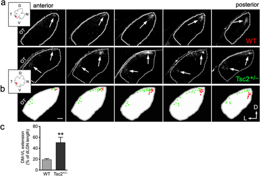 Tsc2+/− mice have defects in topographic mapping of contralateral projections in dLGN(a) Representative series of fluorescent micrographs showing termination territories in contralateral dLGN from DiI-labeled ventro-temporal RGCs of Tsc2+/+ versus Tsc2+/− littermates at P19. Anterior is to the left and posterior to the right in each series of sections. Dashed lines represent the borders of dLGN. Arrows indicate DiI labeled RGC termination zones. Insets represent tracings of the flat-mounted retina and injection site for each mouse. OT: optic tract; D: dorsal; V: ventral; T: temporal; N: nasal; and L: lateral. (b) Schematic drawings and colored dots show the position and area of DiI labeled termination in each corresponding dLGN section from wild-type (in red) and Tsc2+/− (in green) littermates. In Tsc2+/−, the lower border of the termination extended erroneously into the area that is innervated by the ventral-nasal RGCs in wild-type mice8. Scale bar represents 100 µm. (c) Quantification of the percentages of DM to VL extension to length of dLGN along the same axis. Data are represented as mean ± SEM (19.1 ± 2.1% in wild-type, n = 4 mice; and 50.3% ± 9.7 % in Tsc2+/− littermates, n = 6 mice. **: P < 0.01 by t-test).