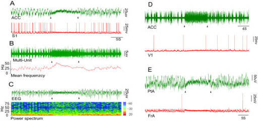 Electrophysiological recordings from cortical areas during nociceptive stimulation. A, upper panel: Trace of the extracellular signal from the ACC, showing that the amplitude was reduced while the frequency was increased when a nociceptive stimulus was applied; lower panel: Intracellular trace from S1, showing that the Down state disappeared and the membrane potential (Vm) switched to a persistent Up state during nociceptive stimulation. B: The Multi-Unit signal was filtered from the upper panel in A. The spike firing rate of the MU signal was increased, and the Down state disappeared under nociceptive stimulation. C, upper panel: the trace filtered from A (upper panel), note that EEG waves switched to low-amplitude, high-frequency pattern activity; lower panel: The power spectrum of the corresponding EEG (C, upper panel), showing that the low frequency band was markedly reduced. D: The traces recorded from the ACC (upper panel) and from V1 (lower panel). E: The traces recorded from PtA (upper panel) and FrA (lower panel). Triangles signify the start and end of nociceptive stimulation. The color bar represents the proportion of EEG bands.