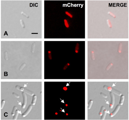 Fluorescent distribution of PdhS-mCherry fusion in stationary growth phase E. coli. A, early stationary phase; B, middle stationary phase; C, late stationary phase. White arrows point to refractile bodies that are only present in the bacteria from the late stationary culture phase. Scale bar: 2 μm. DIC means differential interference contrast (Nomarski). All micrographic images were taken with the same magnification.