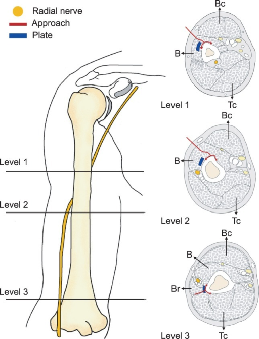 Cross-sectional anatomy of the distal humeral shaft. Cr | Open-i