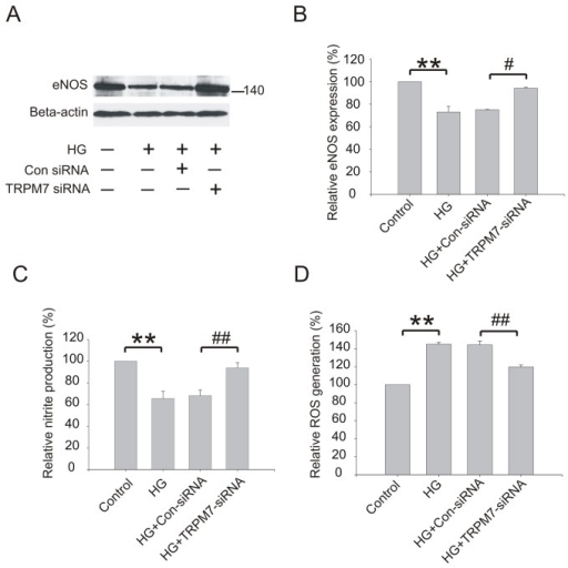 Effect of TRPM7 siRNA on eNOS protein expression, NO and ROS generation in HG treated HUVECs.The cells were preincubated with TRPM7 siRNA or control siRNA for 48h, and then stimulated with HG for 72h. (A) Representative immunoblots showing eNOS protein expression level. (B) The corresponding bar graphs showing the relative expression of eNOS protein normalized to beta-actin. (C) The production of NO was determined by measurement of nitrite, a stable product of NO. (D) The production of intracellular ROS was assessed by the oxidation of 2',7'-dichlorofluorescin diacetate to fluorescent 2',7'-dichlorofluorescein. **p<0.01 vs. control; ##p<0.01 vs. control siRNA. n=3 for immunoblotting , 5 for ROS generation assay and 6 for NO measurement.