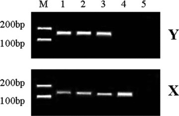 Detection of X- and Y-chromosome specific sequences by PCR. M, Marker; lane 1, control (differentiated epidermal cells); lane 2, positive control (epidermal stem cells); lane 3, grafting group (dedifferentiation-derived cells); lane 4, mouse skin tissue; lane 5, no DNA (negative control).