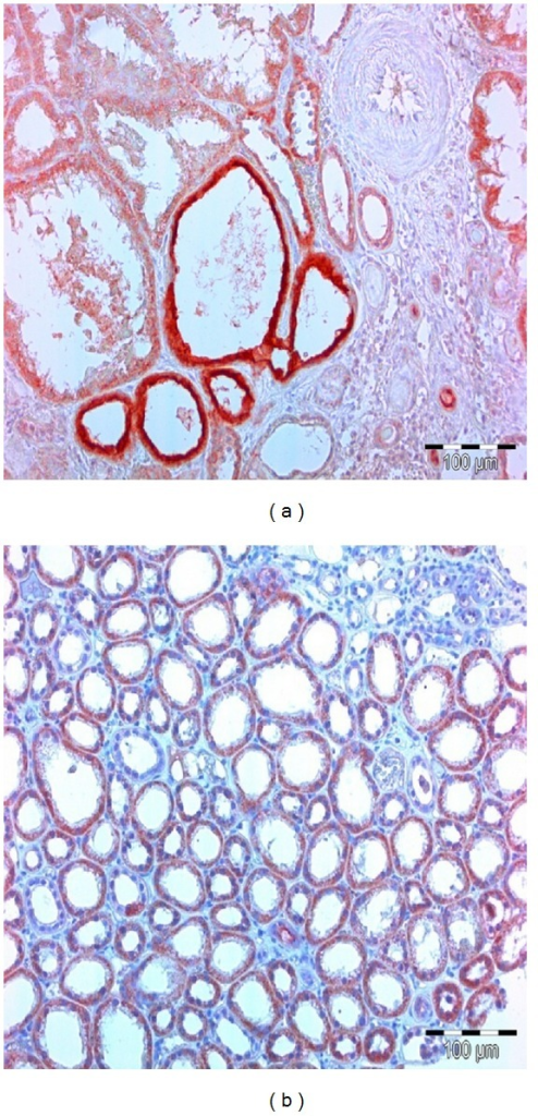 KIM-1 positive tubules are of intense red color. (a) Apical membrane of tubulocytes has the strongest affinity for KIM-1 specific antibodies. (b) Entire cytoplasm of tubulocytes has strong affinity for KIM-1 specific antibodies.