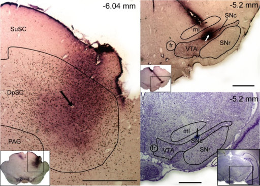 Location of the recording and injection sites in representative animals. Left: a coronal section at high and low (inset) magnification, showing the superior colliculus processed with tyrosine hydroxylase (TH) and c-fos immunohistochemistry. The section shows fos-like immunolabeling (black dots) in the colliculus as a result of neural activity induced by an injection of bicuculline. An electrolytic lesion at the recording/injection site is indicated by an arrow. Right: coronal sections at high and low (insets) magnification, processed with TH immunohistochemistry (top) and cresyl violet (bottom). Top: TH immunolabeling (purple cells and processes) in the ventral midbrain and the electrode track and recording site (arrow) in the SNc. Bottom: the site can be seen again as a blue dot (indicated by an arrow). The position of all sections is given relative to bregma. Scale bars, 1 mm. SuSC, superficial layers of the SC (zonal layer, superficial gray layer, and optic layer); DpSC, deep layers of the SC (intermediate gray and intermediate white layers, deep gray/white layers); PAG, periaqueductal grey; VTA, ventral tegmental area; ml, media lemniscus; fr, fasciculus retroflexus.