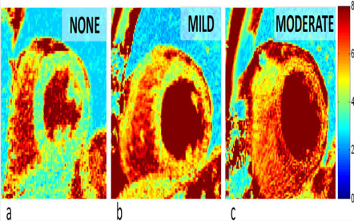 Mid-ventricular short-axis T2 maps of varying degrees of rejection. The color bar (right side) indicates the T2 values in ms. a) No rejection (0R) in a 39-year-old female. b) Mild rejection (1R) in a 61-year-old male. c) Moderate rejection in a 66-year-old male.