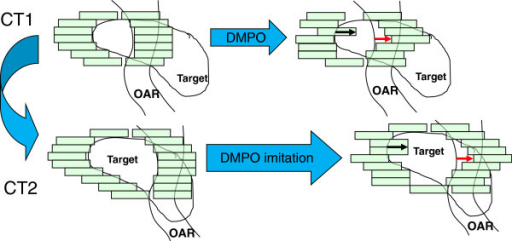DMPO imitation: the DMPO fine-tuning for CT1 (blue arrow – sparing, red arrow – exposure) is imitated for CT2, taking changed vertical extension of the target into account.