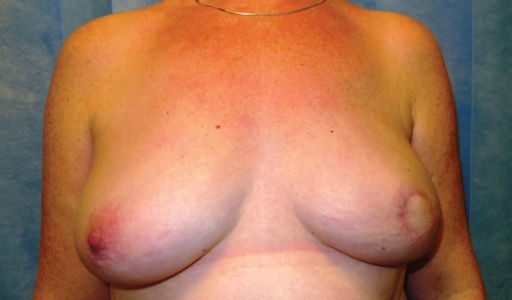 Patient with Left autologous LD reconstruction prior to CC-V flap nipple reconstruction
