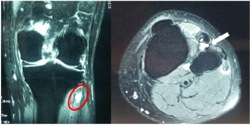 Left knee MRI demonstrated a lobulated, multilocular, and well-demarcated cystic-appearing mass medial to the fibular head (ganglion).