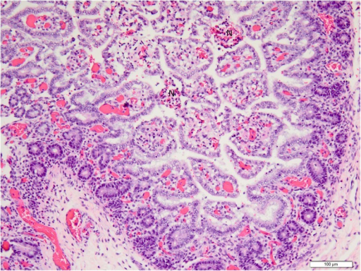 Low (20X objective) magnification photomicrograph of jejunum of piglet shown in Fig. 4.Mucosa and submucosa are diffusely hyperemic, and villi multifocally are necrotic. Necrotic villi (N) have hemorrhage in the lamina propria and loss of absorptive epithelium. Photomicrograph was taken of 4 μm-thick section of 10% neutral-buffered formalin-fixed, paraffin-embedded jejunal tissue stained with hematoxylin and eosin. Bar = 100 μm.