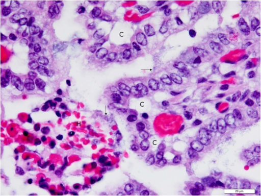 Higher (100X objective) magnification photomicrograph of jejunum shown in Fig. 5 with detail of necrotic and intact villi.The lamina propria of a necrotic villus is hemorrhagic (H), and contains numerous cells with pyknotic nuclei (P), indicating coagulation necrosis. The epithelium overlying this villus is absent, due to necrosis and sloughing of epithelial cells into the intestinal lumen. The exposed basal lamina of the necrotic villus is colonized with enterotoxigenic E. coli (vertical arrow), with bacteria having penetrated into the lamina propria with access to the microcirculation. The villi above and to the right of the necrotic villus have ETEC bacteria (horizontal arrow) colonizing the apical surfaces of absorptive epithelial cells. Many of these epithelial cells are in the process of sloughing as evidenced by the presence of clefts (C) between their basolateral surfaces and the underlying basal lamina. Photomicrograph was taken of 4 μm-thick section of 10% neutral-buffered formalin-fixed, paraffin-embedded jejunal tissue stained with hematoxylin and eosin. Bar = 20 μm.
