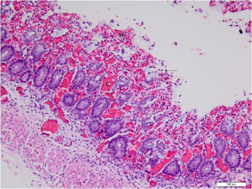 Low (20X objective) magnification photomicrograph of spiral colon of piglet shown in Fig. 4.Mucosa and submucosa are diffusely hyperemic and hemorrhagic; a markedly hyperemic venule (C) in the center of the field is seen. The epithelium on the mucosal surface is almost completely absent with the exception of a few cells (arrow) that are in the process of sloughing; architectural detail in the lamina propria and deep crypt epithelium are still intact at this point. Photomicrograph was taken of 4 μm-thick section of 10% neutral-buffered formalin-fixed, paraffin-embedded spiral colonic tissue stained with hematoxylin and eosin. Bar = 100 μm.