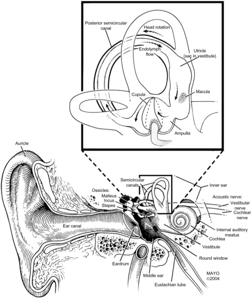 The vestibular system.Notes: Used with permission of Mayo Foundation for Medical Education and Research. All rights reserved. The vestibular system is composed of the three semicircular canals, the utricle, and the saccule (not labeled but adjacent to the utricle), which are filled with endolymph fluid. Hair cells located in the cupula have stereocilia that detect endolymph flow in response to angular or linear acceleration.